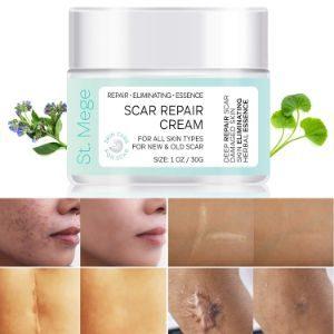 St. Mege Scar Repair Cream