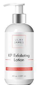 Lilah James KP Exfoliating Lotion